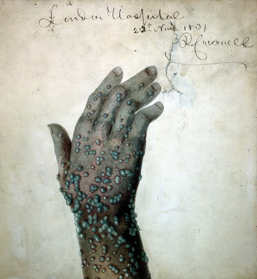 L0019716 Green Smallpox-pustules by Carswell. Credit: Wellcome Library, London. Wellcome Images images@wellcome.ac.uk http://wellcomeimages.org A hand and wrist with green smallpox-pustules. Signed and dated 'London Hospital 22 Nov [?] 1831 R. Carswell'. Watercolour 3e/12/1831 By: Robert CarswellPublished: 1831. Copyrighted work available under Creative Commons by-nc 2.0 UK, see http://wellcomeimages.org/indexplus/page/Prices.html